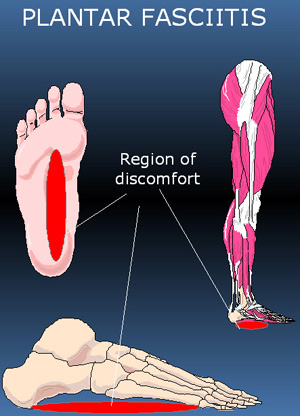 plantar fascia rupture associated with corticosteroid injection